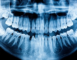 A panoramic X-ray of a mouth