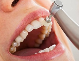 close-up of a dental cleaning