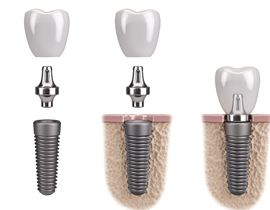 three phases of dental implant process