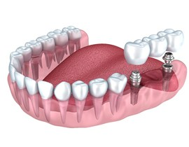 two dental implants and partial denture