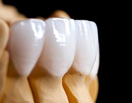 porcelain veneers placed over a model of a mouth